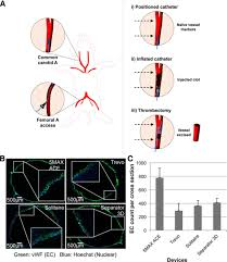endothelial trauma from mechanical thrombectomy in acute stroke