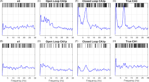 hippocampal closed loop modeling and implications for seizure
