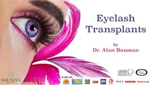 How Expensive Are Eyelash Extensions Eyelash Transplant Com