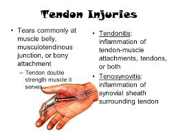 Tendon Synovial Sheath Muscular System Chapter 16 Pgs Muscular System Muscles