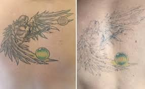 debunking the myth of removing green tattoo ink the untattoo parlor