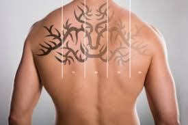 laser tattoo removal the safest technology for removing tattoos
