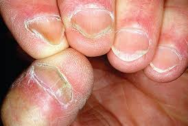 what are spoon nails health nails magazine