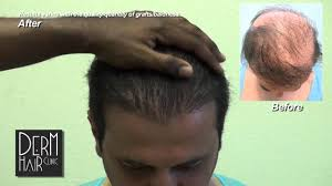 hair pieces for crown area body hair transplant hairpiece problems toupee problems a