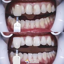 Dentist That Do Teeth Whitening Laser Teeth Whitening M Dental Clinic Damansara Utama Tian