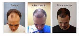 hair transplant month by month pictures restore by katona andrew after 4 months fue youtube