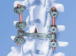 depuy synthes italy