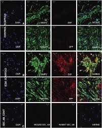 canap ap itifs odontogenic induction of dental stem cells by extracellular matrix