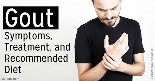 gout symptoms treatment and recommended diet