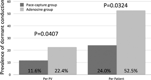 pulmonary vein isolation using a pace capture u2013guided versus an