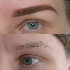alopecia eyebrows trichotillomania eyebrows