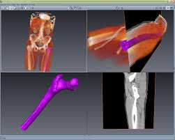 3d Medical Software Software Mu Visualization Center