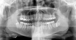 halloween background dental saginaw dentist mead family dental part 2