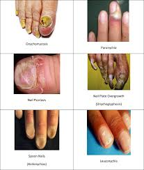 drug delivery through nails present and future