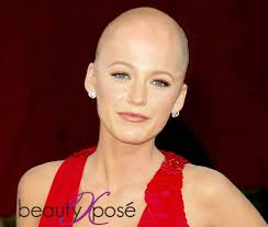 bald women flickr the bald and the beautiful blake lively beautyxposé beautyxposé