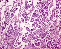 lepidic pattern meaning classification of adenocarcinoma of the lung with a special