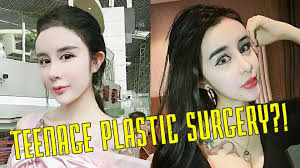 15 year old gets extreme plastic surgery cosmetic surgery in