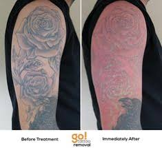 tatts on tatts off professional tattooing and tattoo removal