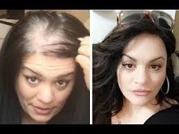 rachel thinning hair how to hiding thin balding hair by june penny youtube