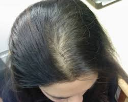 thinning hair in women on top of head androgenetic alopecia care for your hair