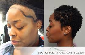 hair transplant for black women hair transplant before and after images female