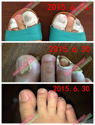 toe varisi nail fungus treatment special traditional chinese