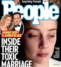 new photos show amber heard after u0027johnny depp attacked her in