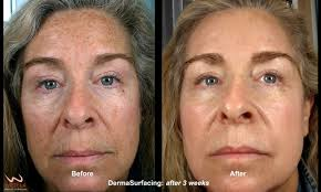 sun damage at la skincare dr david p melamed