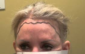 hair style wo comen receding receding hairline in women causes and best treatments strong hair
