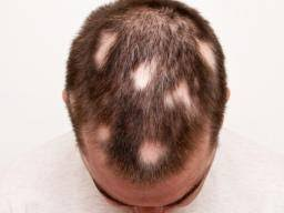 rate of hair growth after chemo hair growth after chemo when does hair grow back