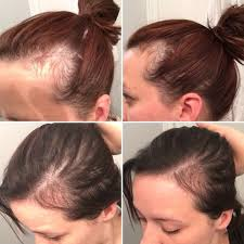 can you color hair after brain surgery best 25 postpartum hair loss ideas on pinterest young living