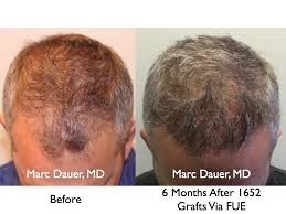 hair transplant month by month pictures fue hair transplant results and donor zone after 6 months hair