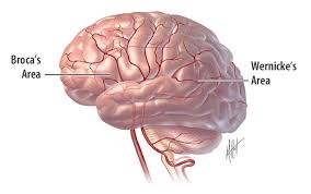 Anatomy And Physiology Of Speech What Is Aphasia Internet Stroke Center