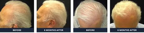 neograft recovery timeline fue hair transplant no linear scar fast recovery buckhead location
