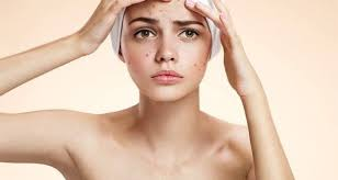 Get Rid Of Blind Pimple Get Rid Of Blind Pimples Naturally Health Art