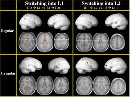 the neural cost of the auditory perception of language switches