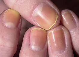 deformities dystrophies and discoloration of the nails skin