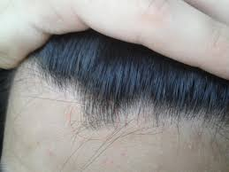 What Can I Do For My Hair Loss Hair Loss Help Text Topic