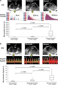 effect of left atrial ablation process and strategy on microemboli