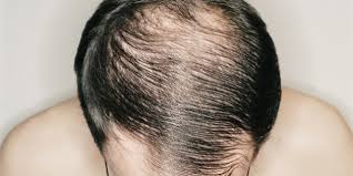 percentae of men with thinning hair at 60 male baldness when do men go bald
