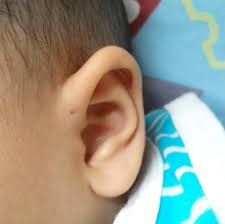 the fascinating reason why some a small above their ear