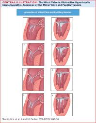 Anatomy Of Heart Valve The Mitral Valve In Obstructive Hypertrophic Cardiomyopathy Jacc