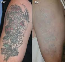 40 best hand tattoo removal images on pinterest latest tattoos
