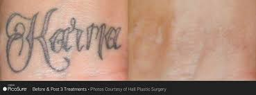 picosure tattoo removal monmouth county tattoo removal wall