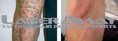 tattoo removal laser differences laseraway