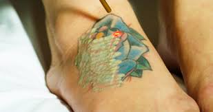 eraser clinic brings multi wavelength astanza trinity laser tattoo