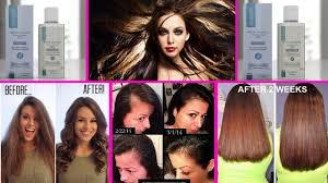 stop womens chin hair growth stop hair loss hair growth tame frizzy hair women hair loss