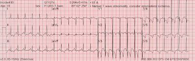 strain pattern ecg meaning ecgs for ems lvh strain ischemia or what