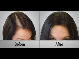 hairr styles for woman with alopica women hide their hair loss instantly and permanently 559 568 hair
