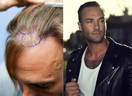 haircuts for crown bald spots celebrity big brother s calum best has three hair transplants